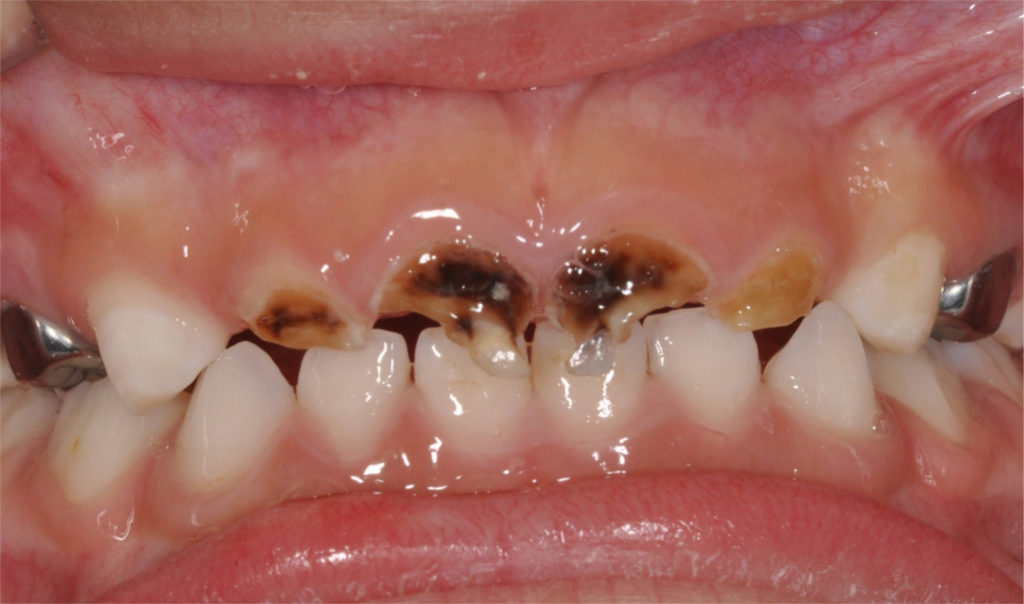 BABY BOTTLE TOOTH DECAY – By Dr.Manasa